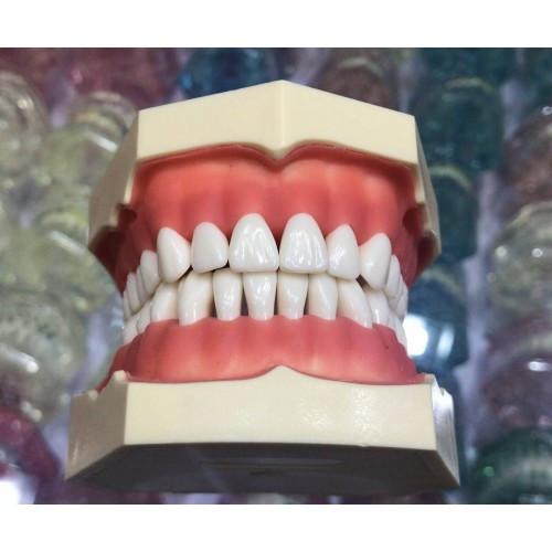 Зубная модель без артикулятора, 28 зубов