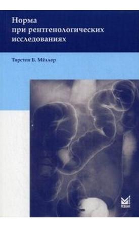 Норма при рентгенівських дослідженнях. 3-е изд. Меллер