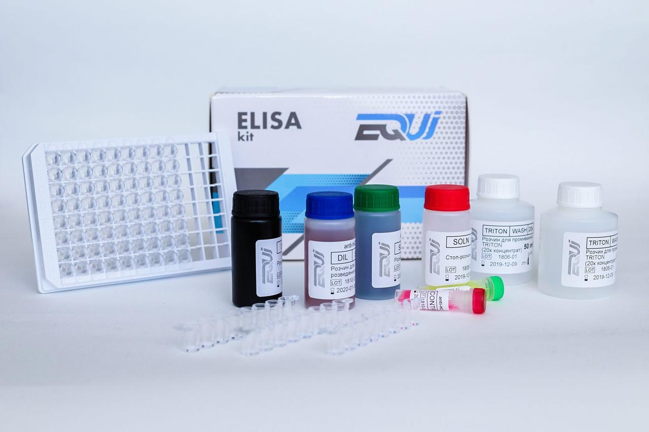 EQUI Toxoplasma gondii IgM
