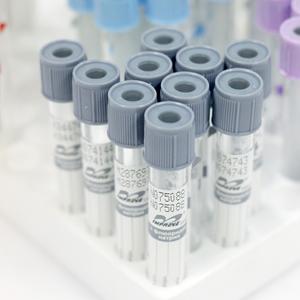 Вакуумні пробірки для дослідження плазми ФТОРИД НАТРІЮ І EDTA 4мл, 4,5 мл. 13*100мм