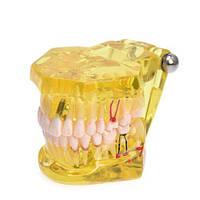 Модели верхней и нижней челюстей с патологией (желтая)