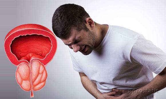 Простоурол - средство от простатита