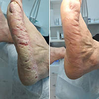 Псориаз. 4 месяца использования чёрного мыла