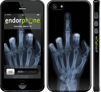 """Чехол на iPhone 5s Рука через рентген """"1007c-21"""""""