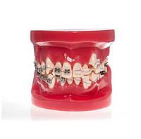 Модель демонстрационная обучающая ортодонтическая с брекетами