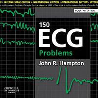150 ECG Problems