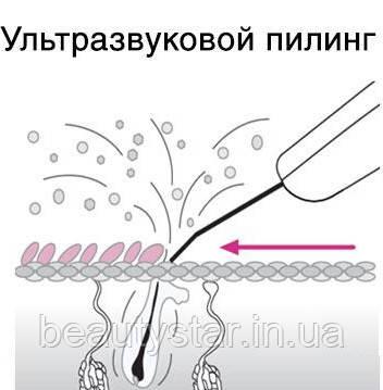 Ультразвуковой пилинг