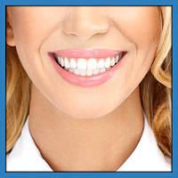 Засоби для відбілювання зубів