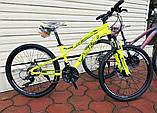 """Велосипед Oskar 24""""FLAME желтый подростковый, фото 8"""