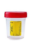Ємність для забору сечі URI-BOX 120 мл (стерильна) FL Medical