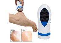 Прибор для удаления огрубевшей кожи стоп Pedi Spin (Реплика), фото 1