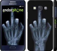 "Чехол на Samsung Galaxy A3 A300H Рука через рентген ""1007c-72"""