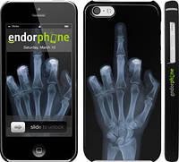 """Чехол на iPhone 5c Рука через рентген """"1007c-23"""""""
