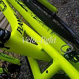 """Велосипед Oskar 24""""FLAME желтый подростковый, фото 3"""