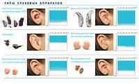 Ремонт, диагностика и настройка медицинских (цифровых) слуховых аппаратов