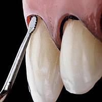 Пакер в стоматологии