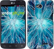 """Чехол на LG L70 Dual D325 чернило """"4726u-201-535"""""""