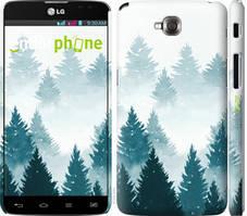 """Чохол на LG G Pro Lite Dual D686 Акварельні Ялинки """"4720c-440-535"""""""