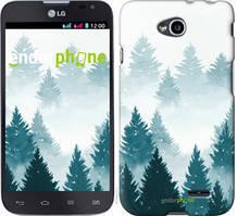 """Чехол на LG L70 Dual D325 Акварельные Елки """"4720u-201-535"""""""