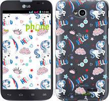 """Чехол на LG L70 Dual D325 Единорожки 2 """"4715u-201-535"""""""