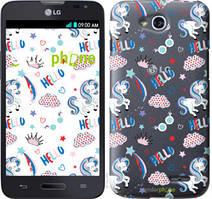 """Чехол на LG L90 Dual D410 Единорожки 2 """"4715u-202-535"""""""