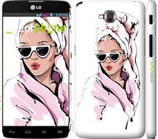"""Чохол на LG G Pro Lite Dual D686 Дівчина в окулярах 2 """"4714c-440-535"""""""