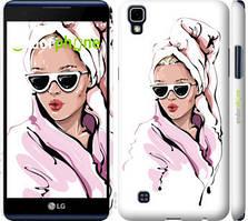 """Чохол на LG X Power K220DS Дівчина в окулярах 2 """"4714c-398-535"""""""