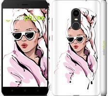"""Чохол на Xiaomi Redmi Note 4X Дівчина в окулярах 2 """"4714c-951-535"""""""