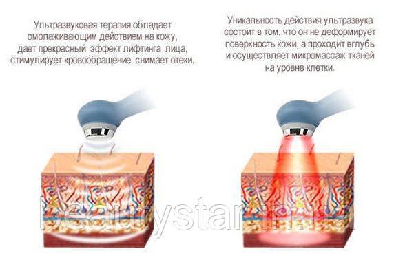 Аппараты ультразвуковой кавитации