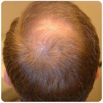 Head & Hair & Nail