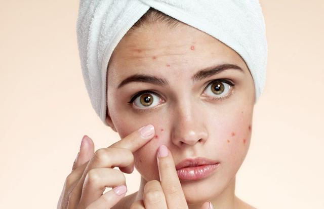 Bioaqua Anti Acne