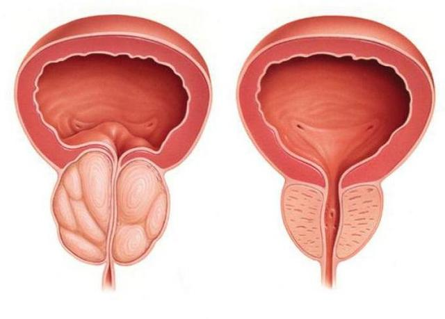 Prostatricum Plus