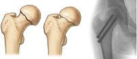 """Переломы шейки бедренной кости (переломы """"шейки бедра"""")"""