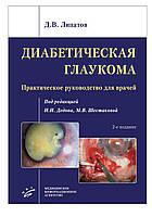 Липатов Д.В. Диабетическая глаукома