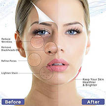 Портативный ультразвуковой Скрабер для кожи лица согревающий Heating Skin Scrubbe White, фото 3