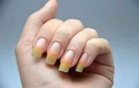 Желтизна ногтей. Причины нездоровья ногтевой пластины