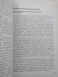 Алкоголізм (Медико-соціальні аспекти) Керівництво для лікарів Ю. Лісіцин, фото 5