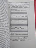 Механизмы мозга Д.Вулдридж 1965 год, фото 4