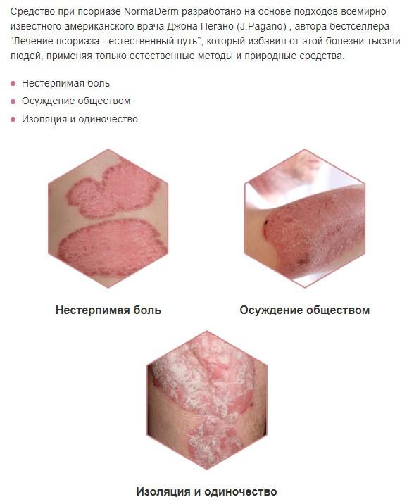 Крем от псориаза NormaDerm