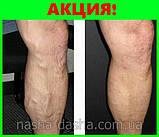Гель Вариус - красивые ноги без варикоза и отеков, фото 8
