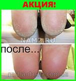 Nomidol - крем от грибка ног (с быстрым эффектом), фото 9