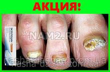 Комплекс Экзолоцин от грибковой инфекции стоп и пальцев ног.
