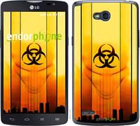 "Чехол на LG L80 Dual D380 biohazard 23 ""4840u-332-2448"""