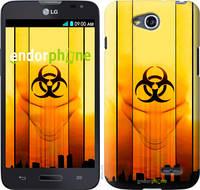 "Чехол на LG L90 Dual D410 biohazard 23 ""4840u-202-2448"""