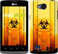 """Чехол на LG Joy H220 biohazard 23 """"4840u-376-2448"""""""