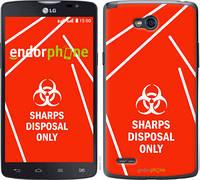 "Чехол на LG L80 Dual D380 biohazard 27 ""4843u-332-2448"""