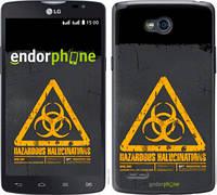"Чехол на LG L80 Dual D380 biohazard 28 ""4846u-332-2448"""