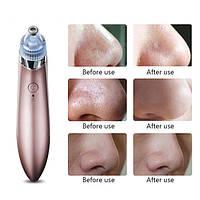 Вакуумный аппарат для чистки пор Beauty Skin Care Specialist XN-8030