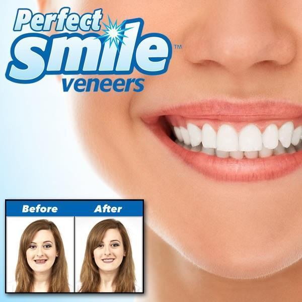 Временные сьемные виниры (зубы) красивый прикус красивые зубы Perfect Smile Veneers White (VENEEROOD)