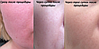 Мезороллер для лица AIW 100 Skin Roller System 540 игл длина иглы 1 мм Black (vol-56), фото 5